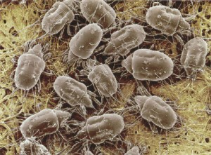 Dustmites under magnification